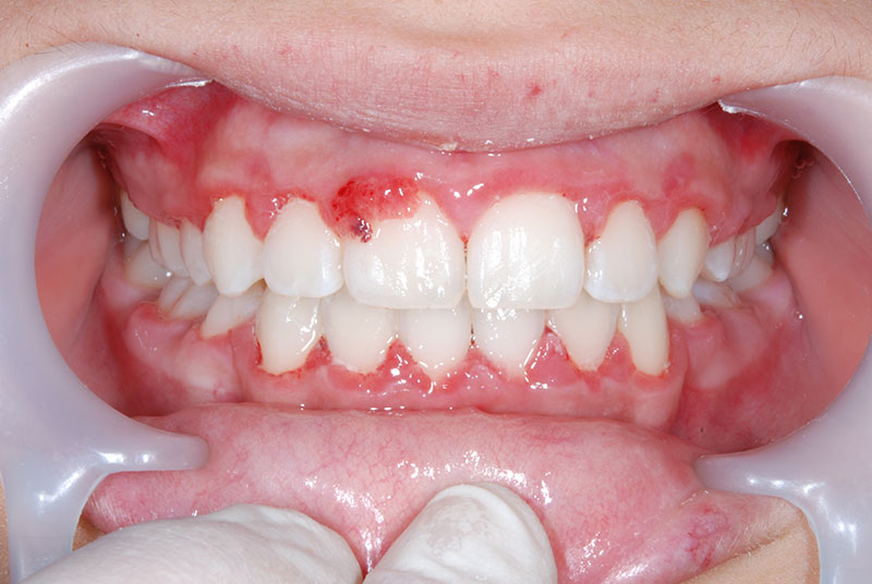 gingivectomie1