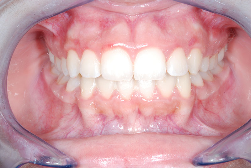 gingivectomie2
