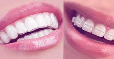 ortodontie2